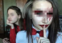 «Хотела ехать в Донбасс убивать»: новые детали истории «хабаровских живодерок»